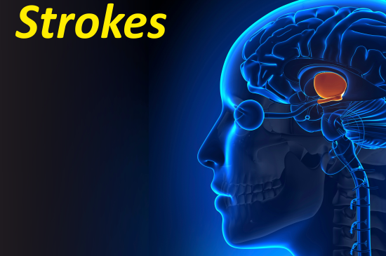 Understanding the Causes of  Strokes