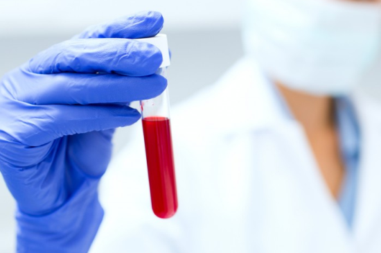 What is Fasting Before A Blood Test?